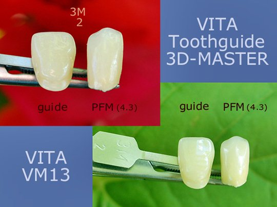 Corona dental de metal y porcelana Vita VM13